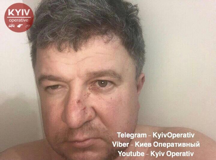 В Киеве известный бизнесмен устроил кровавую бойню на глазах собственных детей (фото)