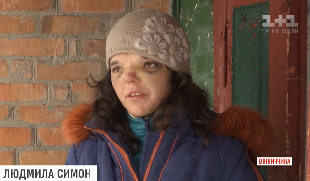 Даже глаза открыть не мог: скандал с избитым ребенком под Винницей получил продолжение (видео)