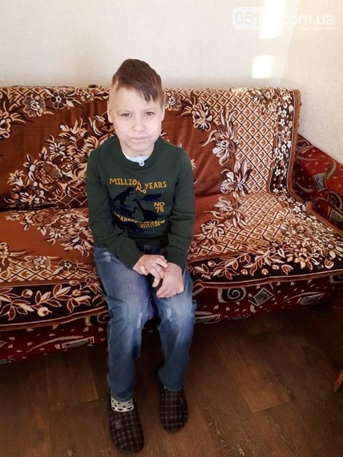 В глазах боль: чудом выжившего маленького украинца бросили родители