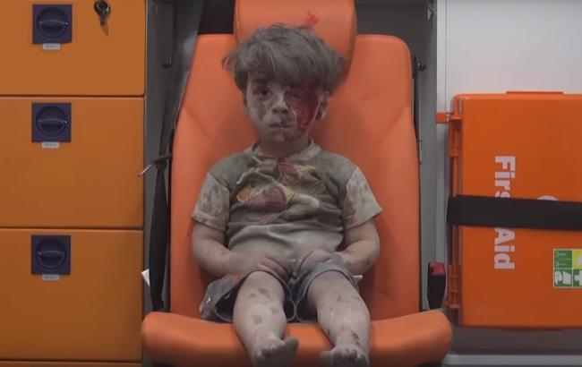 Кровь, одиночество ишок: фото ребенка изАлеппо заставило рыдать весь мир